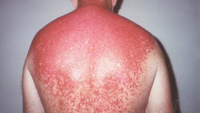 Разпознавате ли алергията към слънцето
